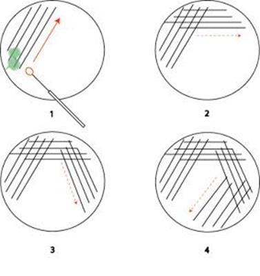 Quadrant Streak Plate Technique